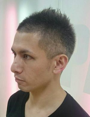 ソフモヒ薄毛