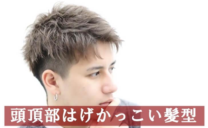 頭頂部はげかっこいい髪型