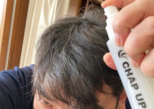 チャックアップ初期脱毛